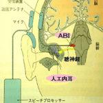 聴性脳幹インプラントについて